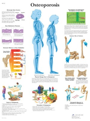 All Products - Wandkaart: Osteoporosis