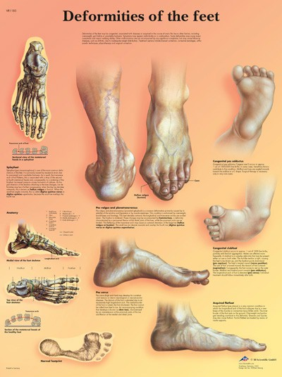 All Products - Wandkaart: Deformities Of The Feet