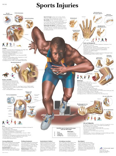 All Products - Wandkaart: Sport Injuries