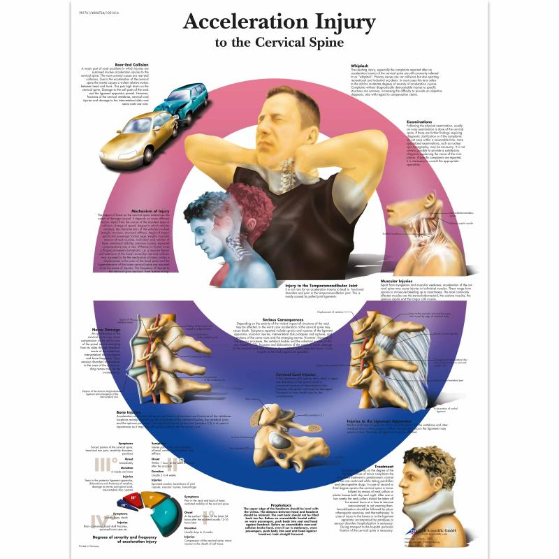 All Products - Wandkaart: Acceleration injury to the cervical spine